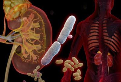 علایم، پیشگیری و درمان عفونت ادراری