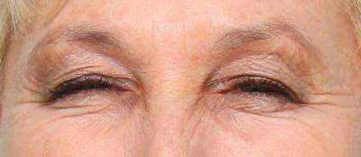 علل و درمان بیماری بلفارواسپاسم (پلک زدن غیر ارادی)