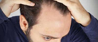 ریزش مو های مردان به این دلایل است