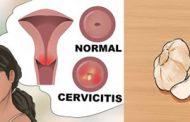 درمان عفونت واژن با سیر
