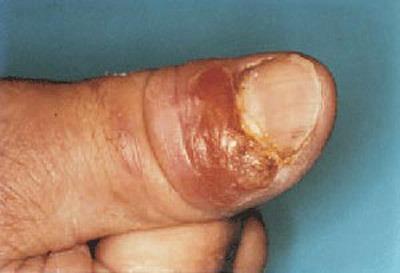 بیماری اسپوروتریکوز و علائم و درمان اسپوروتریکوز