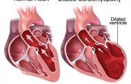 کاردیومگالی یا بزرگ شدگی قلب
