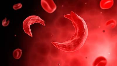 با کم خونی داسی شکل بارداری ممکن است؟