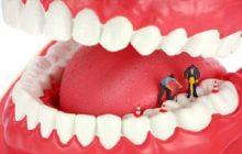 درماندرمان ریشه دندان یا عصب کشی ریشه دندان یا عصب کشی