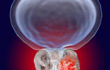 اقداماتی برای کاهش سرطان پروستات