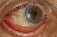 بیماری اکتروپیون چیست؟