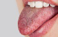 از دلایل شایع خشکی دهان
