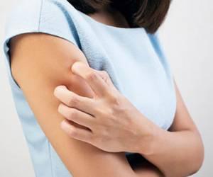 کهیر پوستی چه شکلی است و چطور درمان می شود؟
