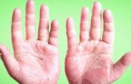 علت اصلی پوسته شدن انگشتان دست
