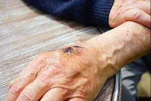 ابداع روشی برای پیشگیری از عفونت زخم با پروبیوتیک ها