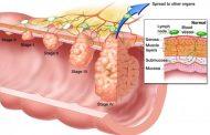 علل ، علایم و درمان سرطان مقعد
