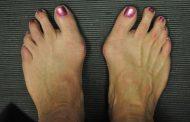انحراف شست پا یا بونیون چیست؟