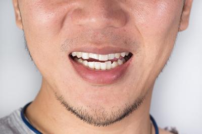 درمان دندان قروچه با روش های خانگی
