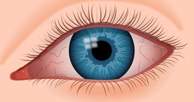 همه چیز درباره خشکی چشم