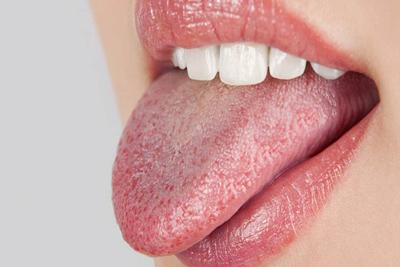 اگر از خشکی دهان رنج می برید بخوانید