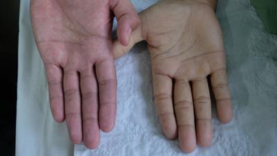7 علامت کم خونی که ممکن است ندانید و 7 درمان طبیعی کم خونی