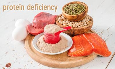 نشانههایی که به شما میگوید کمبود پروتئین دارید