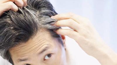 علت سفید شدن مو در سن جوانی